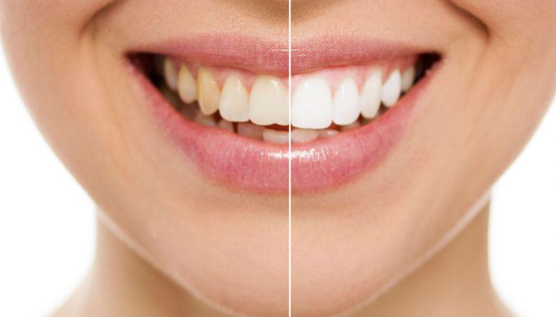 Clareamento Dental 9 Mitos E Verdades Sobre O Tratamento
